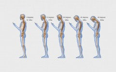 Smartphones Can Be a Pain in the Neck